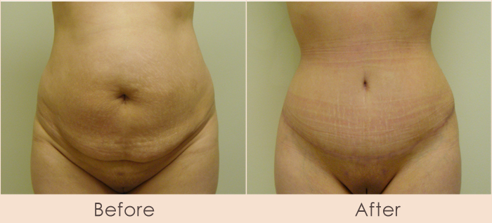 Dr. Michael Gray - Tummy Tuck